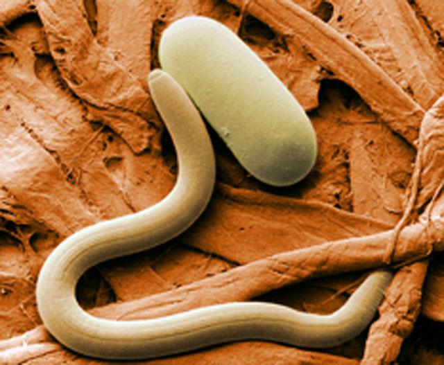 Nematoden sind unter dem Mikroskop gut sichtbar